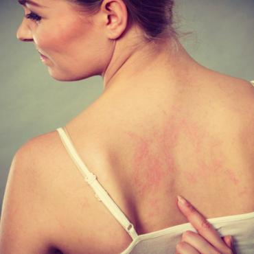 dermatite come combatterla